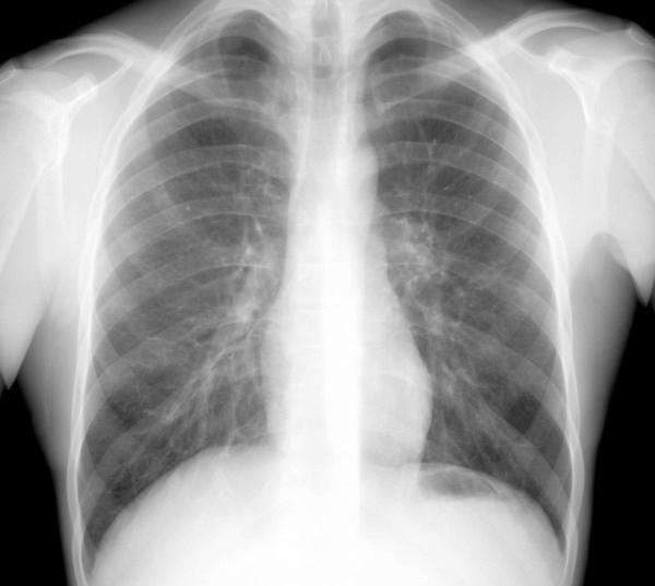 Лечение легких в Китае