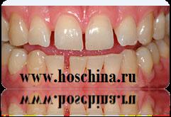 Лечение зубов в Китае