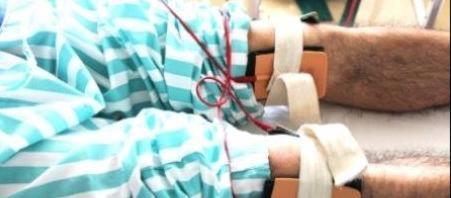 Далянь лечение суставов лфк коленного сустава после травмы