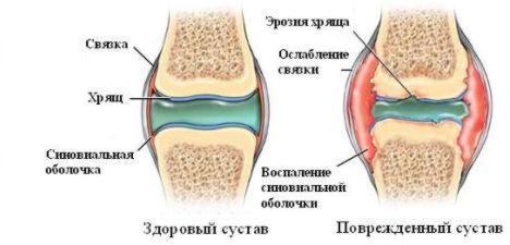 Лечение суставов в Китае Даляне. Лечение артроза артрита в Китае